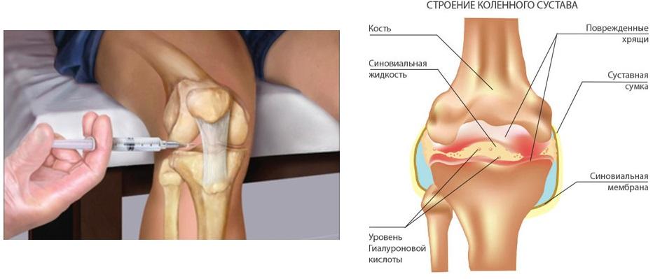Гиалуроновая кислота в коленный сустав название почему болят и опухают суставы на ногах