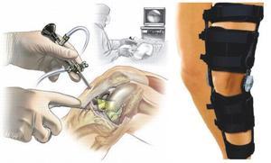 реабилитация после лечения сустава