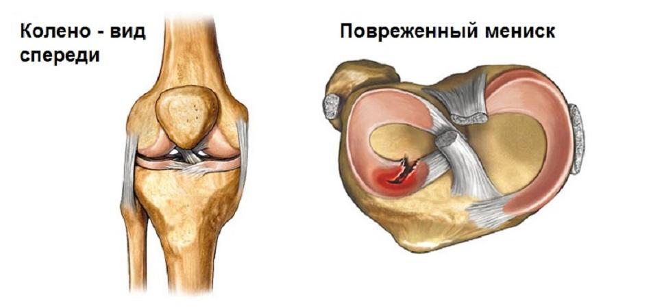 Разрыв внутреннего мениска коленного сустава лечение суставов на хайнань