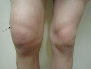 Изображение - Как убрать опухоль коленного сустава otekshee_koleno