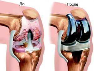 Изображение - Как убрать опухоль коленного сустава endoprotezirovanie_kolena