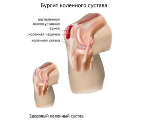 Причины развития бурсита