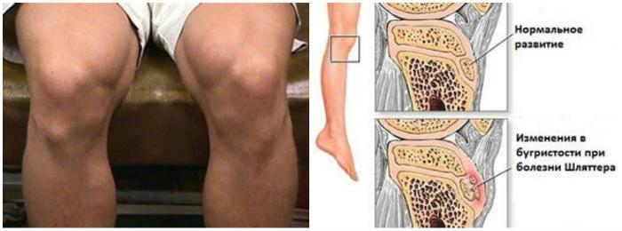 Болит колено с обратной стороны причины