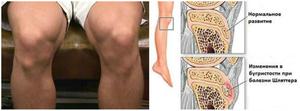 Что такое болезнь Шляттера коленного сустава