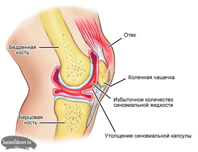 Медицина жидкость в коленном суставе температура боль в суставах в плечах