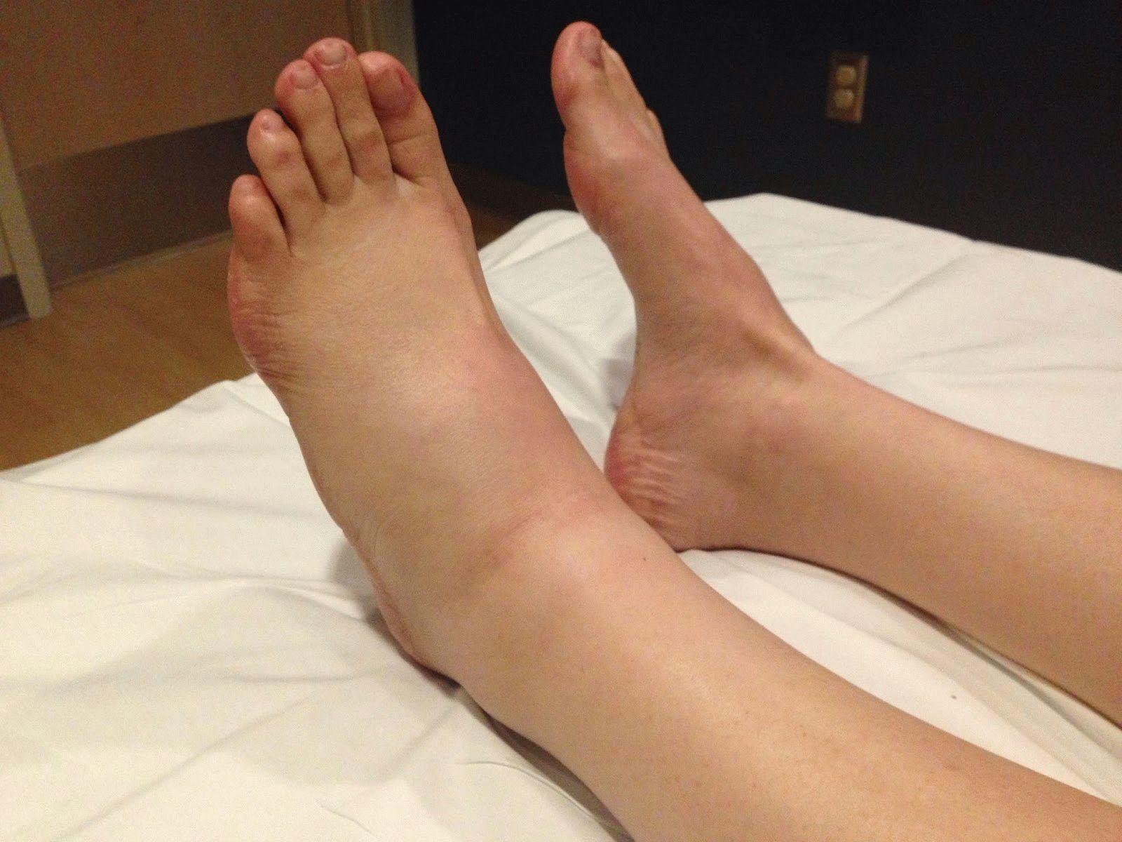 Опухают суставы на ногах внизу киста суставная гимнастика