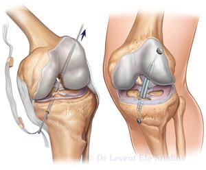 Изображение - Лфк после пкс коленного сустава govoryat_pacienty