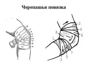Как помогает повязка при травмах