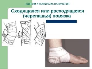 Как и когда накладывать черепашью повязку на коленный сустав