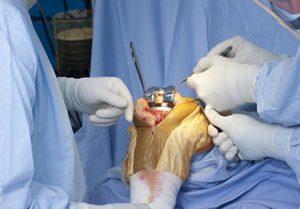 Методика замены коленного сустава