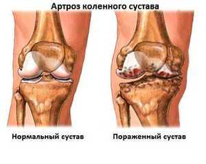 Изображение - Ноющая боль в суставах коленях artroz_kolena