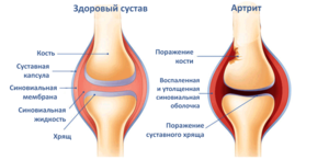 Боли при артрите