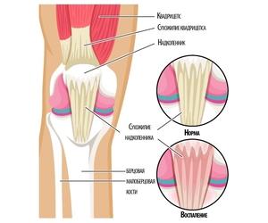 Воспаление коленных связок