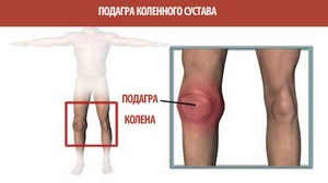 Изображение - Ноющая боль в суставах коленях boli_kolene_podagre