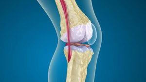 Изображение - Ноющая боль в суставах коленях zabolevanie_osteoporoz