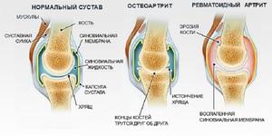 Изображение - Ноющая боль в суставах коленях revmatoidnyy_artrit