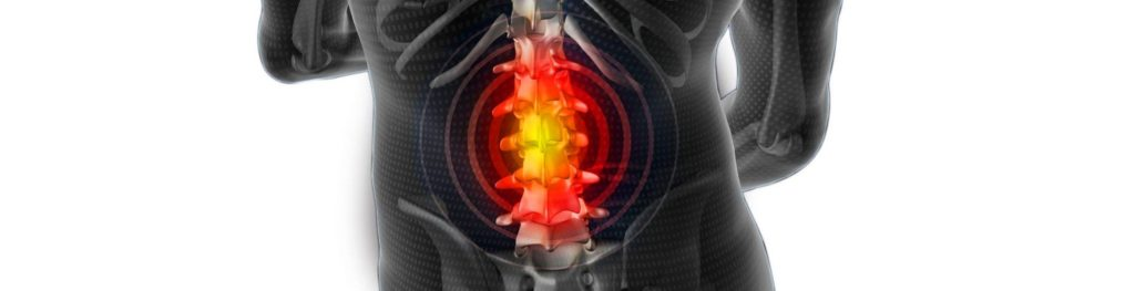 Диагностика мышц и связок при грыже позвоночника