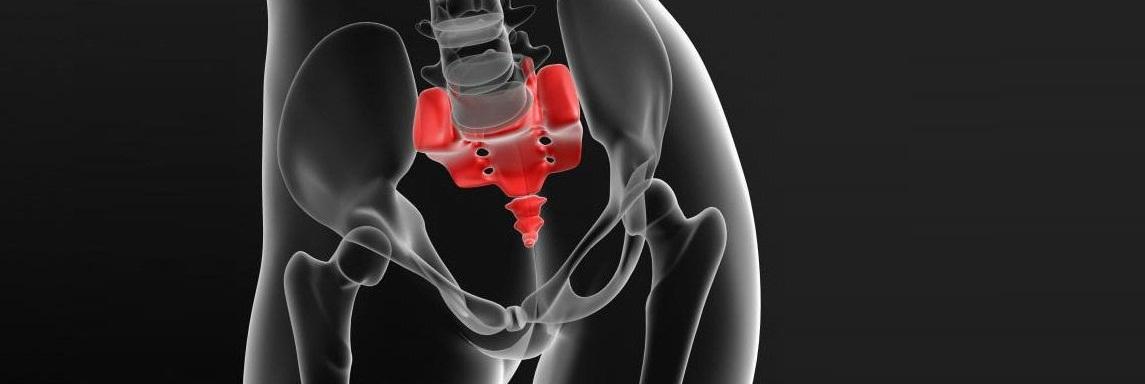 Киста копчика: симптомы и лечение без операции, причины у мужчин и женщин