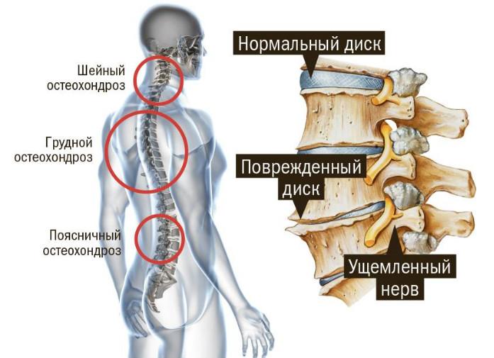 Лечение остеохондроза шейно-грудного отдела