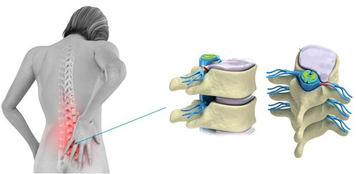 Что такое спондилоартроз и как его лечить?