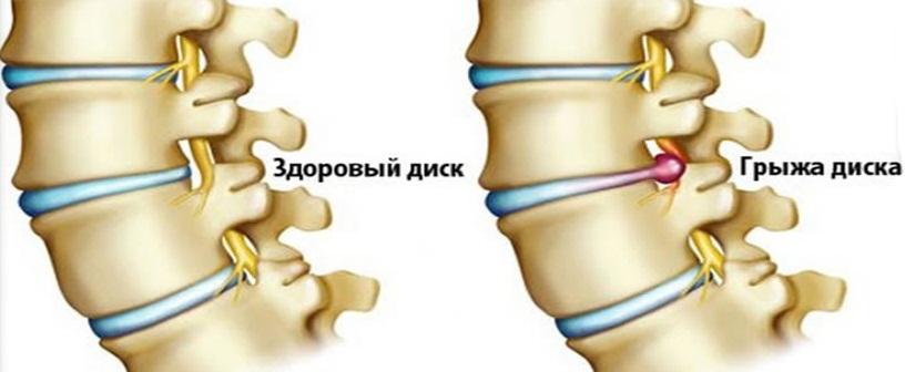 Протрузия дисков позвоночника поясничного отдела: что это такое, симптомы и лечение в домашних условиях