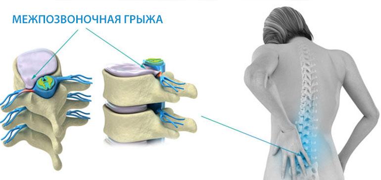 Болезни спины и позвоночника список