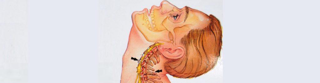 Защемление нервных окончаний в шейном отделе позвоночника