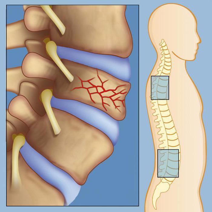 Гемангиома позвоночника - размеры опухоли, виды, симптомы и лечение