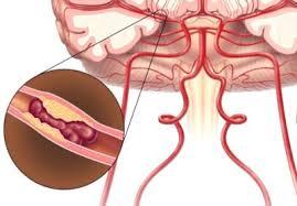 Деформирующий спондилез лечение поясничного спондилоартроза