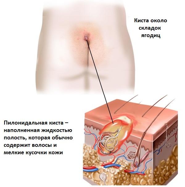 Эпителиальный копчиковый ход (киста копчика, свищ копчика): симптомы, диагностика, лечение эпителиального копчикового хода (киста копчика, свищ копчика)