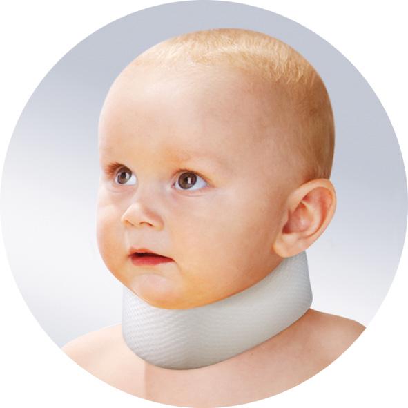 Кривошея у ребнка симптомы болезнь у новорожднного