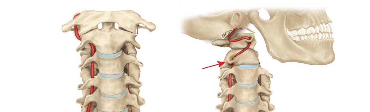Защемление правой позвоночной артерии