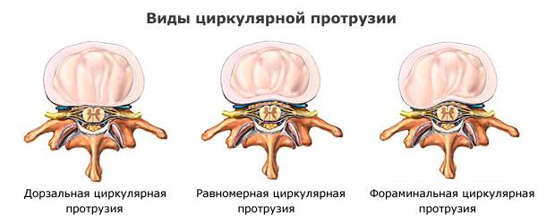 Протрузия межпозвонковых дисков лечение