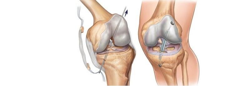 Изображение - Лфк после пкс коленного сустава 46-6-400x275