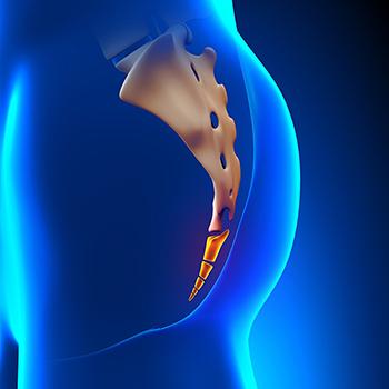 Симптомы и лечение перелома копчика реабилитация