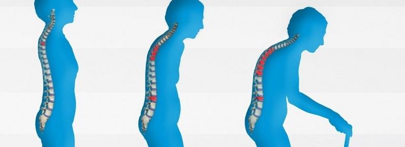 Мр картина дегенеративных изменений пояснично крестцового отдела позвоночника Лечение поясничного отдела