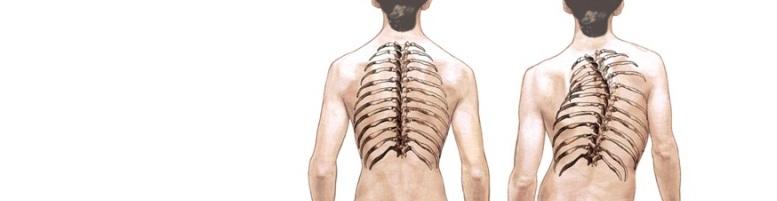 Кривой позвоночник и его лечение