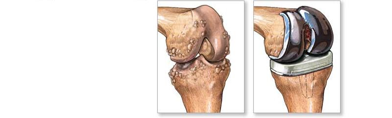 Операция по смене коленного сустава