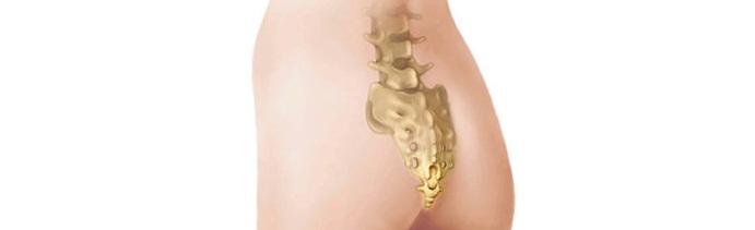 Перелом копчика – симптомы, последствия и лечение перелома копчика