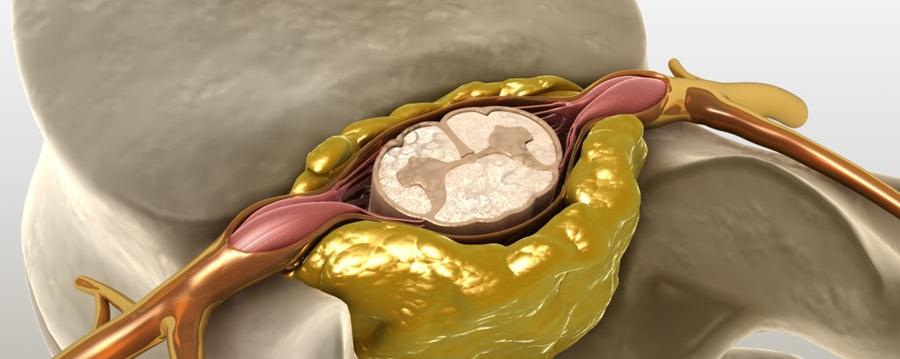 Защемление нерва в спине — что делать и чем лечить