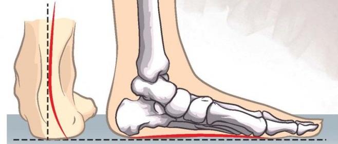 Вальгусная стопа у ребенка: причины и формы отклонения, как лечить заболевание, как исправить искривление ступни