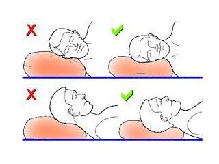 Как правильно спать при шейном остеохондрозе фото
