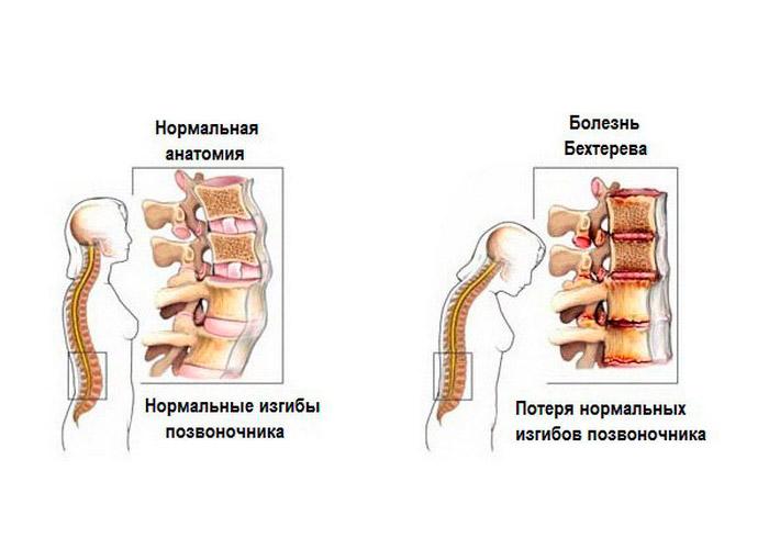 Болезнь бехтерева у женщин - 18 симптомов и признаков, лечение и прогноз