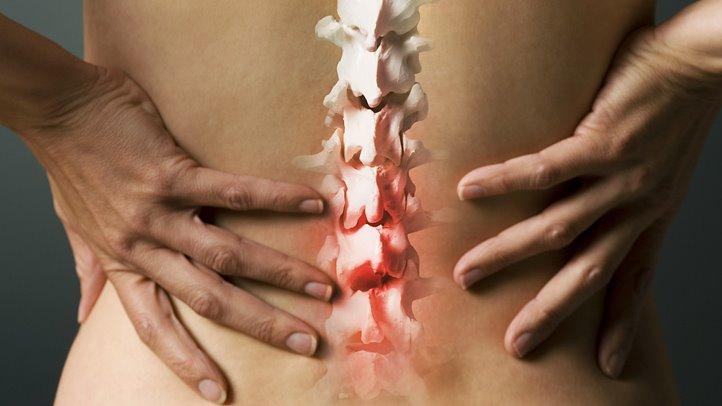 Ушиб спины при падении - лечение в домашних условиях