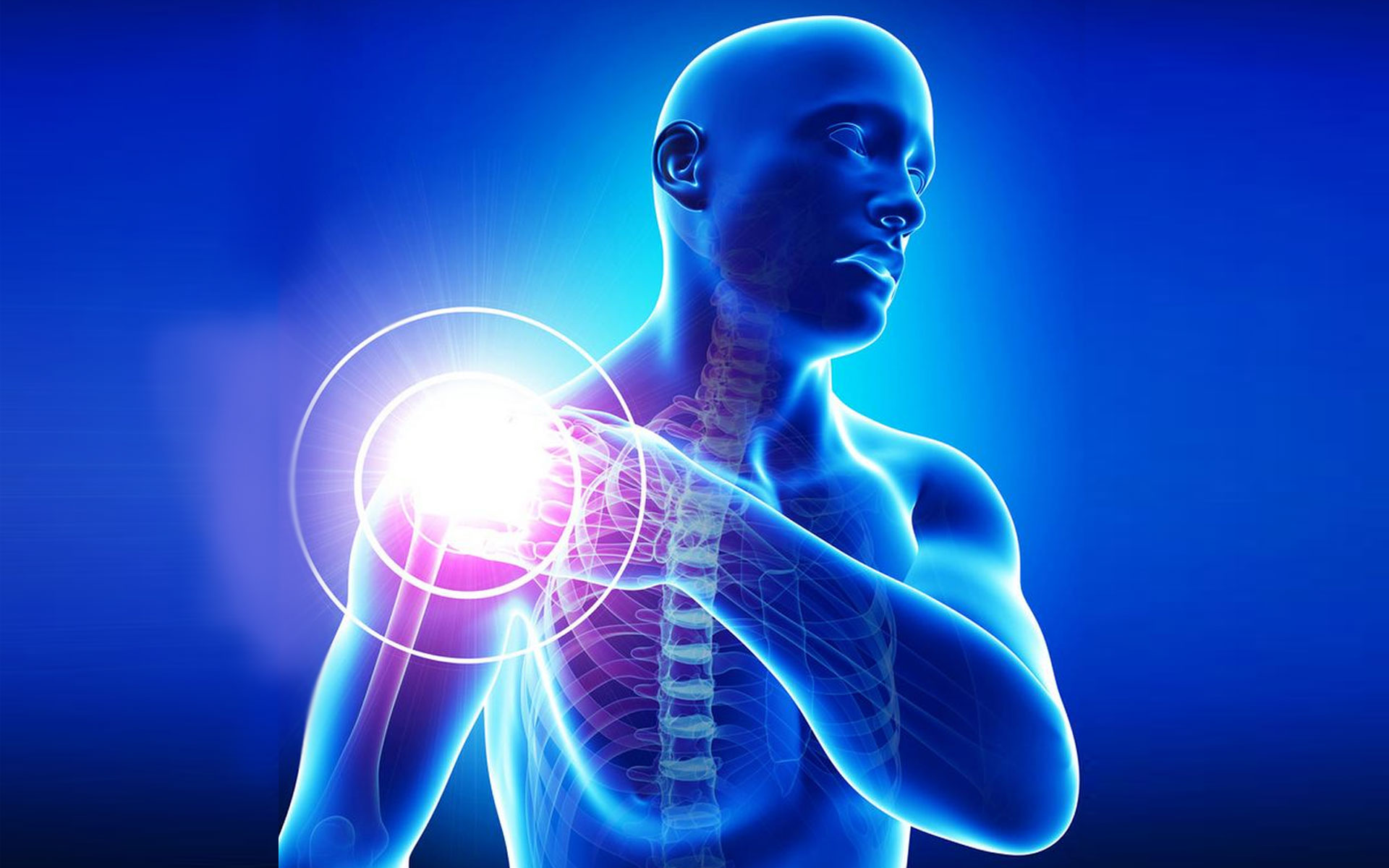 Остеохондроз плечевого отдела позвоночника симптомы и лечение
