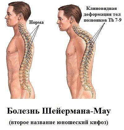 Что такое Болезнь (синдром) Шейермана Мау