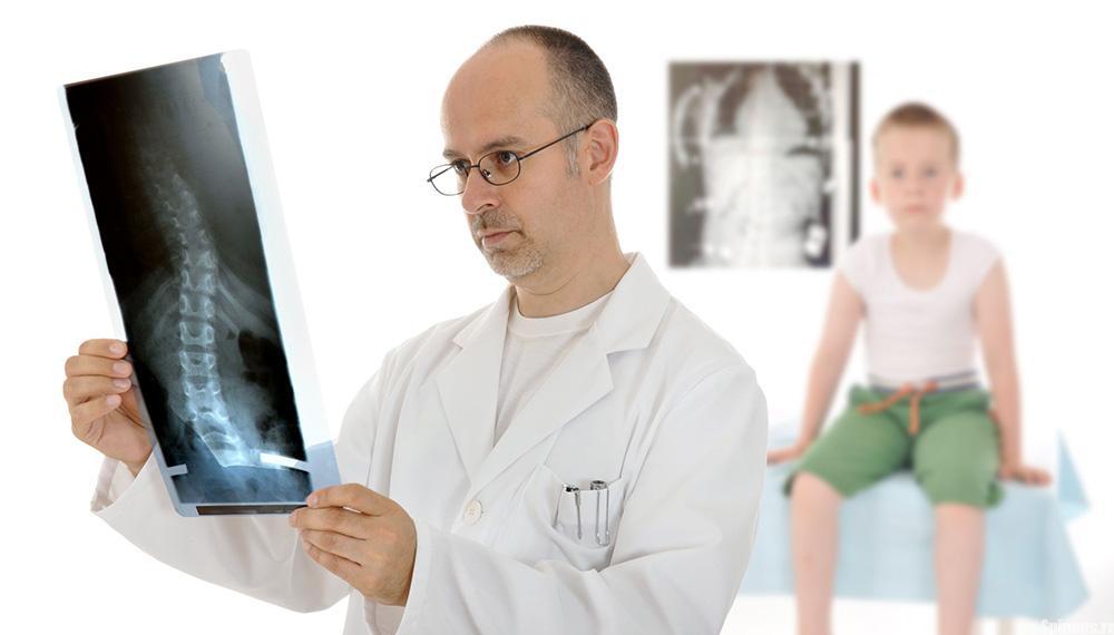 Какой врач проверяет осанку у детей