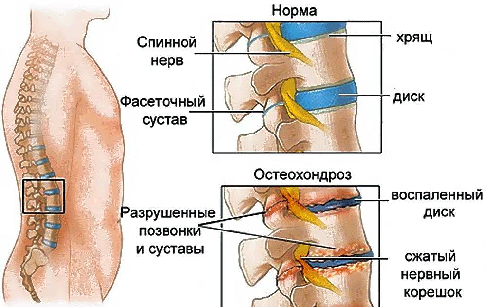 Радикулопатия : причины, симптомы, диагностика, лечение