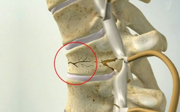 ЛФК при компрессионном переломе позвоночника