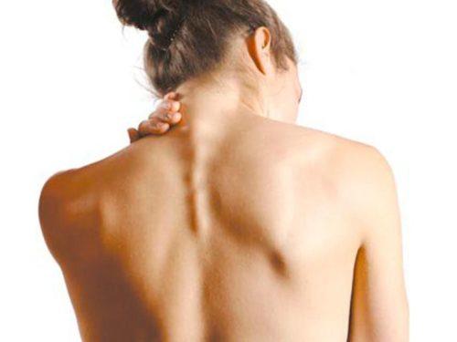 Горб на спине: почему растет и как убрать (избавиться)